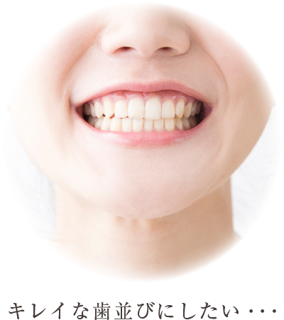 きれいな歯並びにしたい